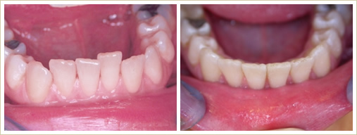 Straitening upper or lower front teeth
